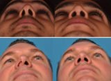 Deviation Of The Septum To The Shape Of The Nose?