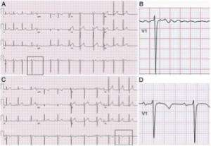 Illustration of Chest Pain And Palpitations After Hitting The Ball?