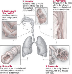 Illustration of The Cause Of A Respiratory Infection That Doesn't Go Away In Babies?