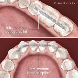Illustration of Overcoming Tooth Roots That Are Left Behind When Pulling Teeth?