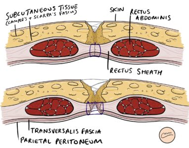 Illustration of Pain In The Surgical Wound On The Stomach When Suffering From Diarrhea?