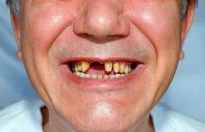 Illustration of The Cause Of Missing Teeth Up To 2 Times?