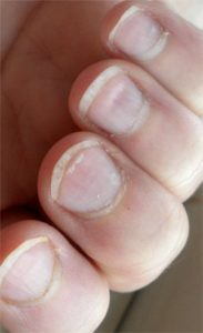 Illustration of Causes And Remedies Indentation In Nails?
