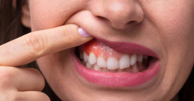 Illustration of The Exact Cause Of Swollen And Painful Gums?