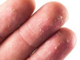 Illustration of The Skin Of The Fingers Peels Off And White Spots Appear?