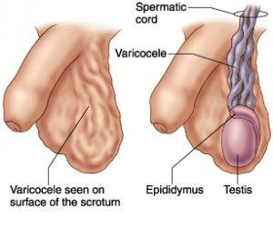 Illustration of Why Is The Left Testicle Like A Lumpy Vein, What Is The Cause?