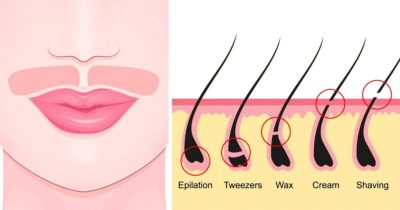 Illustration of Stop The Growth Of Fine Hair On The Face By Taking Birth Control Pills?