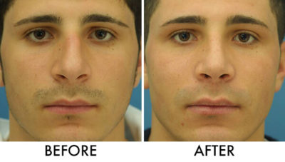 Illustration of How To Deal With Crooked Nose Bones Without Surgery?