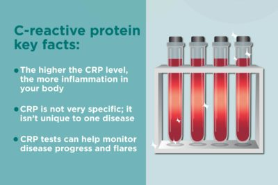 Illustration of Blood And Urine Test Results, High CRP?