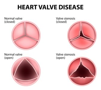 Illustration of Causes Of Different Heart Sounds?