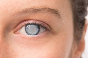 Illustration of Causes Of Foggy Eyes After Removing The Contact Lens?