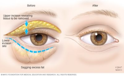 Illustration of What Doctor Do You Have To See The Lower Lid Of The Left Eye?