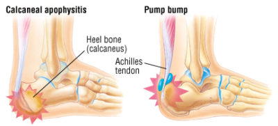 Illustration of The Injury On The Back Of The Foot As It Throws?