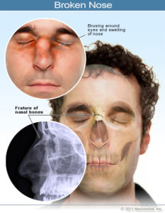 Illustration of Do Nasal Fractures Cause Headaches?