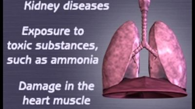 Illustration of The Cause Of The Fluid In The Lungs Is Purplish Black?