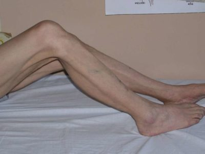Illustration of The Cause Of Fever, Dizziness And Weakness On The Legs When Carried On The Road?