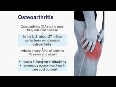 Illustration of Treatment For Osteoarthritis At 32 Years Old?