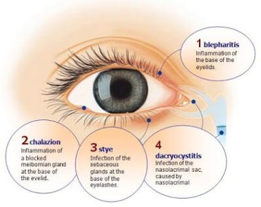 Illustration of The Inner Lids Are Uncomfortable And Painful?