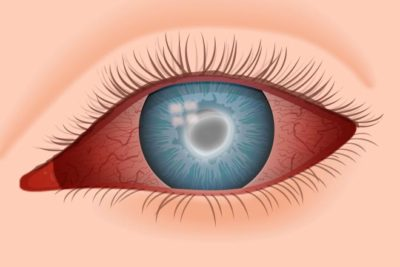 Illustration of Cause The Eye Feels Sore When Removing The Contact Lens?