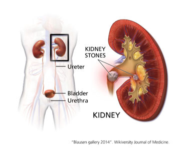 Illustration of The Possibility Of Kidney Stones In People With Gout?