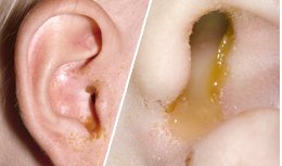 Illustration of Yellow Discharge From The Infected Ear?