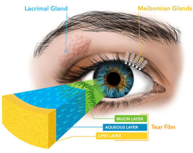 Illustration of Treat Dry Eyes And Plan To Use Contact Lenses?