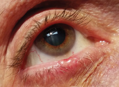 Illustration of Brown, Fat Lumps On The Inside Of The Lower Eyelid?
