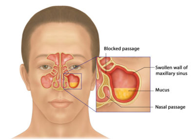 Illustration of Clear Discharge From The Nose When Tired?
