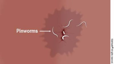 Illustration of There Are Worms In The Child's Anus, Can I Take Deworming Again Before 6 Months?