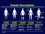 Overcoming Pain Due To Peripheral Neuropathy In Diabetics?