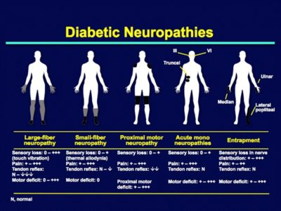 Illustration of Overcoming Pain Due To Peripheral Neuropathy In Diabetics?