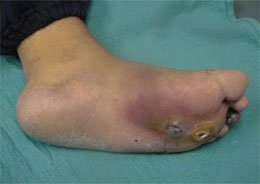Illustration of Symptoms Of An Infected Diabetic Wound?