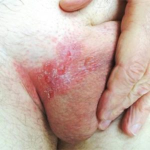 Illustration of Medication For Itching In The Groin Area That Appears Rash And Darkens?