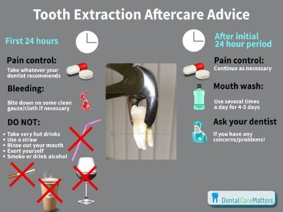 Illustration of How Long Is The Recovery Period After Wisdom Tooth Extraction?
