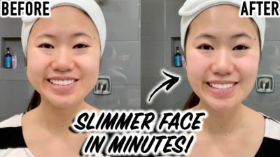 Illustration of The Cheek Is Swollen After Using The Slimming Tool On The Cheek?
