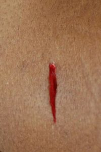 Illustration of Continuous Watery Machete Wounds?