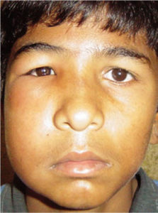 Illustration of Swollen Eyes And Swollen Face, After Dripping With Betel Water?