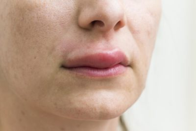 Illustration of There Is A Lump On The Lip But It Doesn't Hurt?