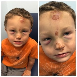 Illustration of The Condition Of The Baby's Forehead Is Bruised And Swollen After Falling?