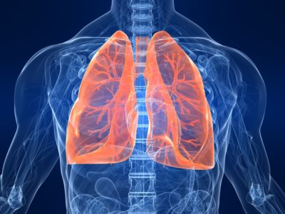 Illustration of The Left Lung Is Narrowed Due To The Large Amount Of Mucus?