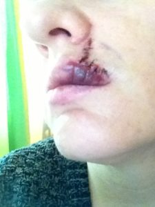Illustration of How To Deal With A Drawn Lip Due To Suturing?