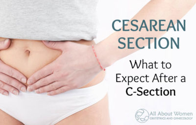 Illustration of The Cause Of Easy Fatigue And Pain In The Caesarean Section Scar 1.5 Years Ago?