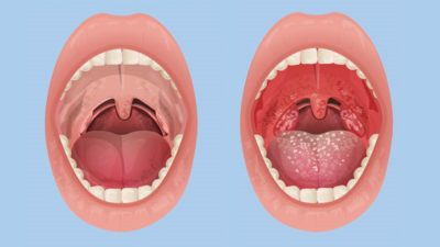 Illustration of Treatment Of Swollen But Not Painful Tonsils?