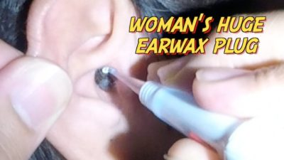 Illustration of Hard Earwax And Ear Plugs?