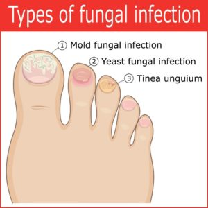 Illustration of Chances Of Yeast Infection Disappear After Nail Removal?