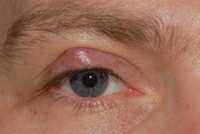 Illustration of Painful Swelling In The Left Eyelid That Is Getting Bigger?