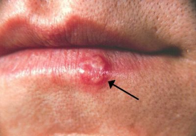 Illustration of When Did The Herpes Appear?