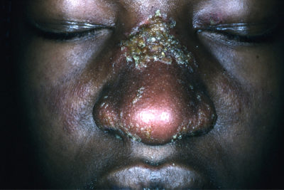 Illustration of The Cause Of The Nostrils Is Blistered, The Wound Looks Like It Is Scratched, Sometimes Bleeding?