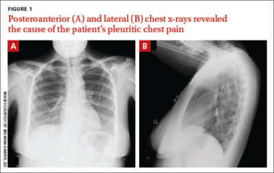 Illustration of Causes Of Chest Pain And Tightness And X-rays?