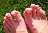 Allergies To The Feet And Hands, Until The Toenails Turn Black And The Skin Of The Toes Peels Off?